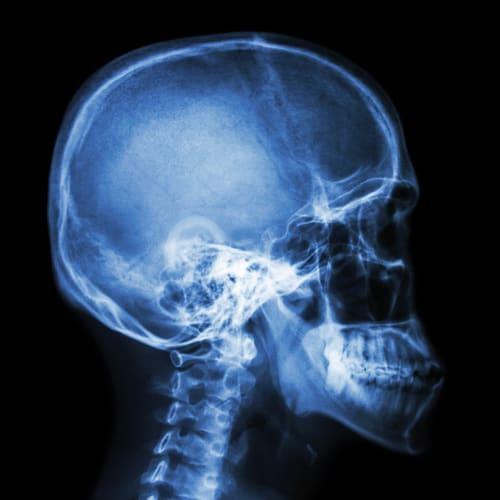 Chirurgische Kieferorthopaedie